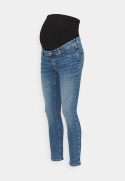 Anna Field MAMA - Jeans Skinny Fit - light blue denim